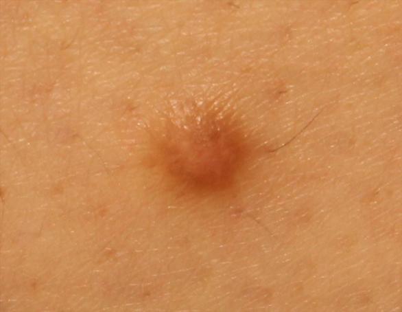皮膚線維腫(Dermatofibroma)
