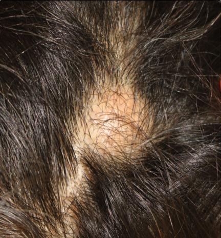外毛根鞘性嚢腫外観