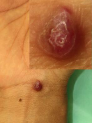 手首毛細血管拡張性肉芽腫