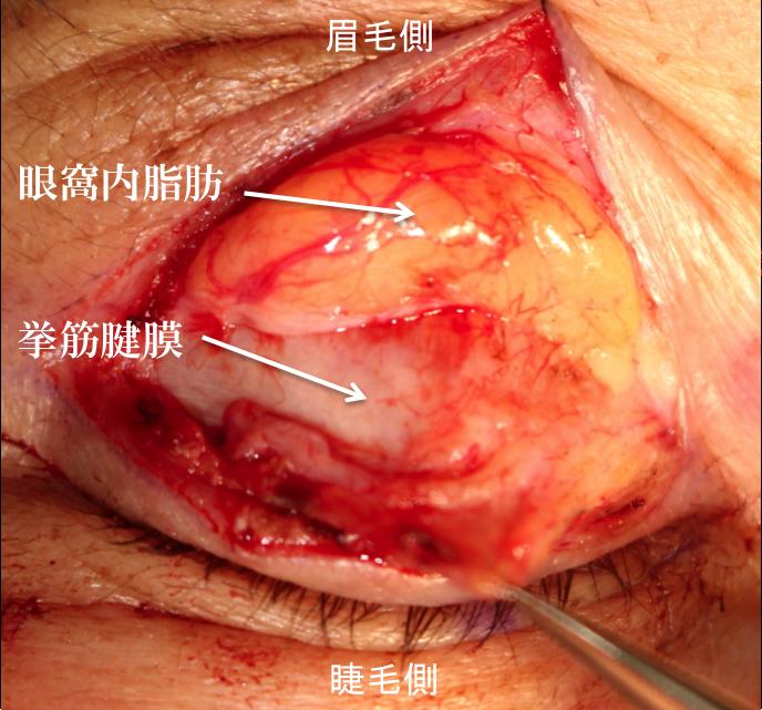 眼瞼下垂解剖